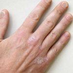 Раздражение на коже рук